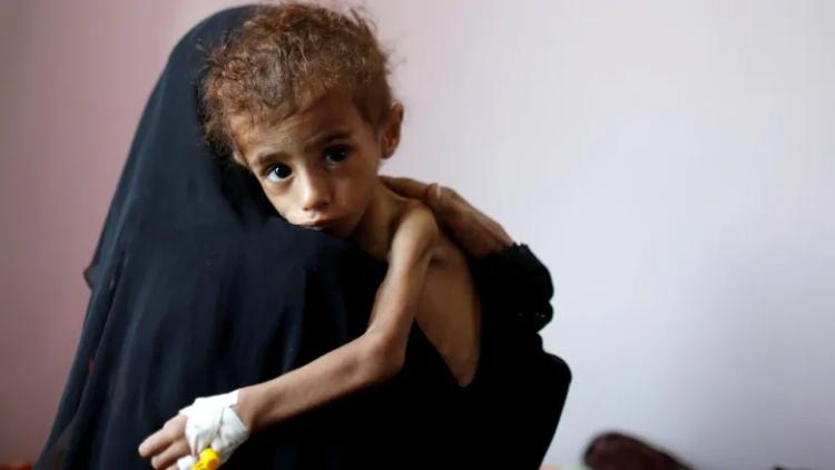 yemen children malnutrition - @godlywoman911